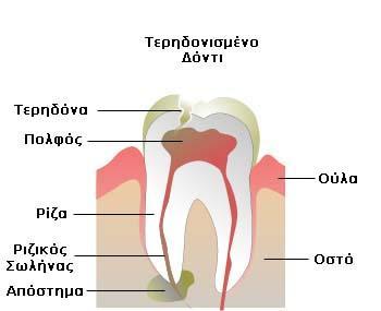 Odontiko-apostima-1