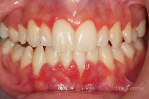oulitida-periodontitida-01