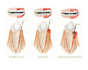 oulitida-periodontitida1